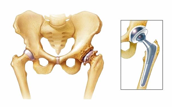 Сложное протезирование суставов поверждение капсулы сустава