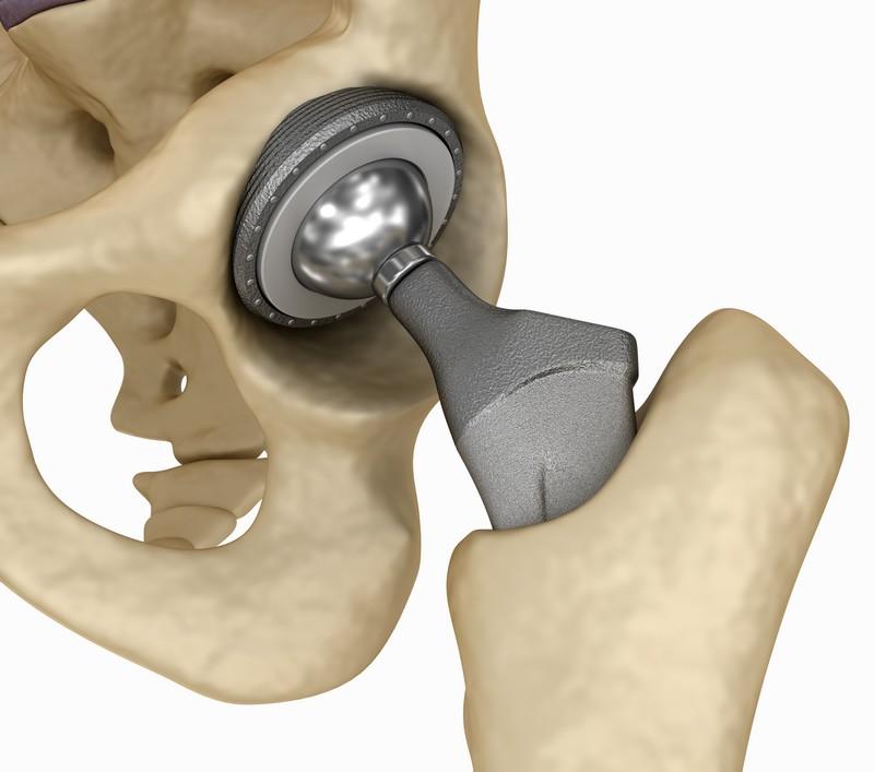 Эндопротезирование сустава - нередко единственная возможность сохранить активный образ жизни и трудоспособность