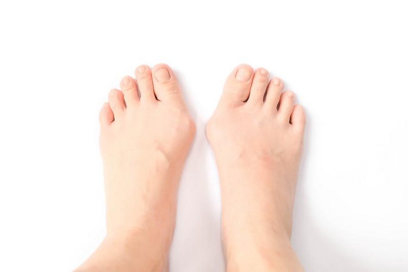 Лечение деформации большого пальца стопы
